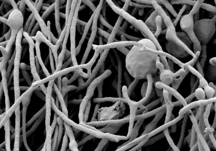 Elektronmikroskopbilde av tre måneder gamle sopptråder av A. finlayi. (Foto: Science/AAAS)