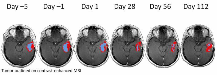 Forskerne kan tydelig se hvordan hjernesvulsten responderer på medisiner. (Foto: (Illustrasjon: Kyrre E. Emblem))