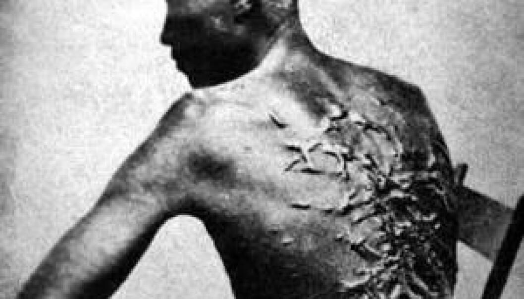 Arr hos en pisket slave, Peter fra Louisiana i USA. Slavereglementet fra Dansk Vestindia viser at pisking og avskjæring av lemmer var mulige straffer også der, hvis slavene rømte eller gjorde opprør. National Archives and Records Administration