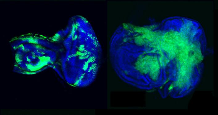 Fluoriserende mikroskopibilder av øyelegemet til bananfluen. Til venstre ser vi en villtype flue med normal cellevekst og hundrevis av voksende celler. Til høyre ser vi en mutert flue med feilregulert cellevekst og tusenvis av voksende celler som danner en kreftsvulst. Alle cellekjernene er farget blå og kloner med voksende celler er farget grønne. Foto: privat