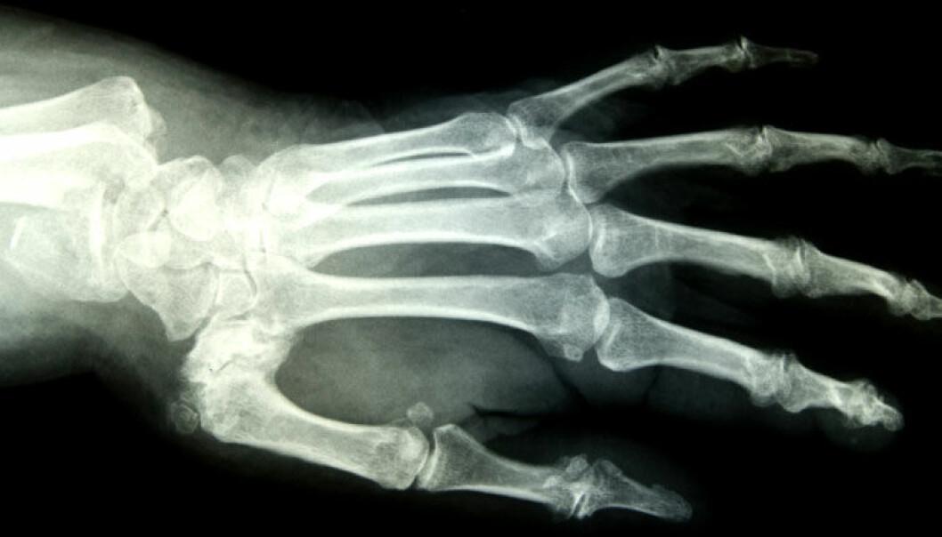 Flest kvinner med håndleddsknekk