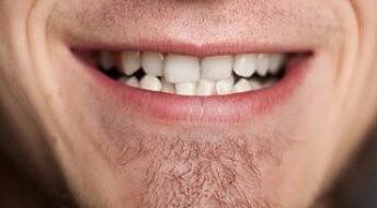 Redder løse tenner og kreftskadde kjever