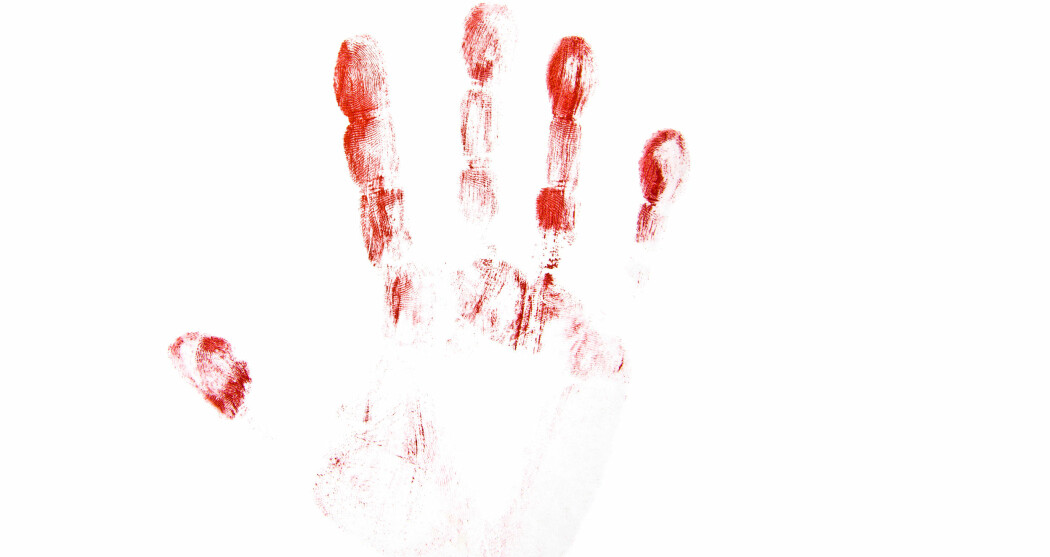 Det gamle Sovjetunionen utmerker seg spesielt når det gjelder å bruke blod fra døde.