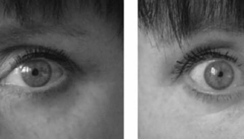 0da404092 Spør en forsker: Slik skåner du øynene mot skjermplager