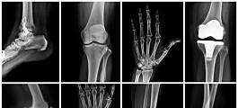 Forskerne fant en bedre måte å lage kontrastmiddel til røntgen