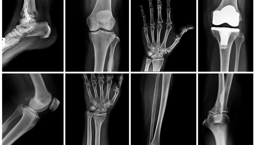 De delene av kroppene som injiseres med kontrastmiddel, «lyser opp» og blir tydeligere på røntgenbildet.