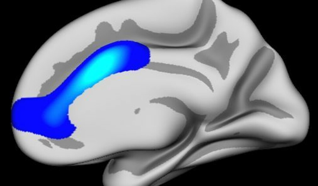 Hjerneområdet i blått er sentralt i utviklingen av selvregulering og viser hvor forskerne fant effekter. Området overlapper nesten nøyaktig med Anterior cingulate, men dekker også litt mer. (Foto: (Illustrasjon: Anders M. Fjell/UiO))