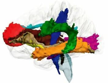 Nervefiberbanene sørger for at tanker mellom sentrale hjerneområder kommuniserer raskt og stabilt. (Foto: (Illustrasjon Christian K. Tamnes/UiO))