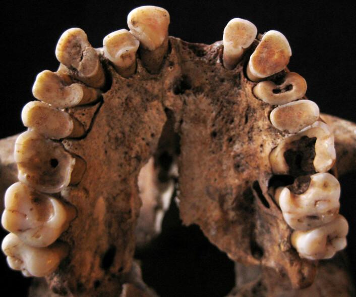 Dette mennesket hadde flere hull og andre tannproblemer, da det levde for mellom 14 000 og 15 000 år siden. Skjelettet ble funnet i Taforalt-hulen i Marokko. (Foto: Isabelle De Groote)