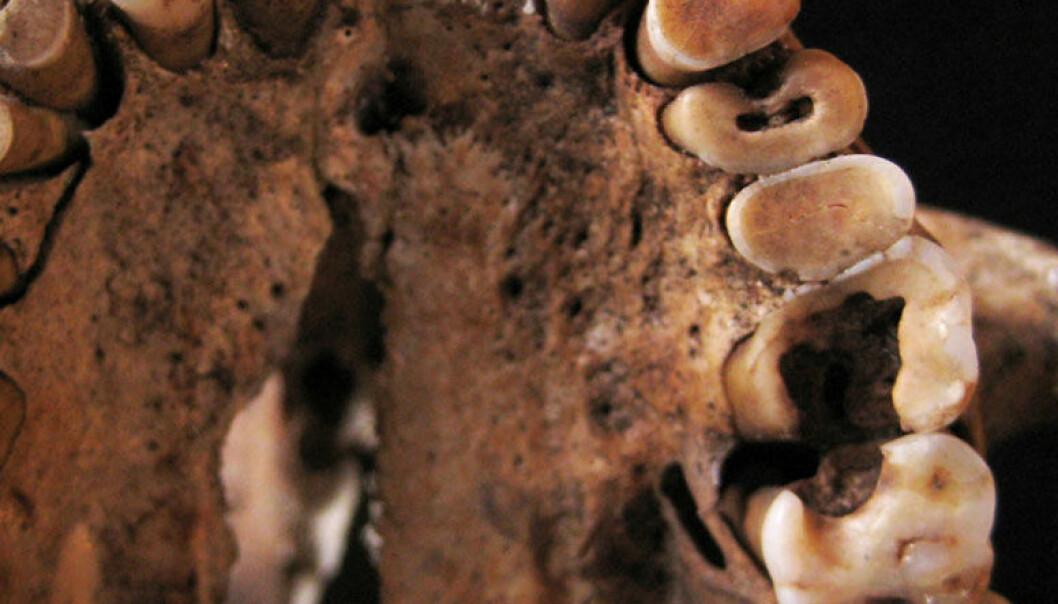Dette mennesket hadde flere hull og andre tannproblemer, da det levde for mellom 14 000 og 15 000 år siden. Skjelettet ble funnet i Taforalt-hulen i Marokko. Isabelle De Groote