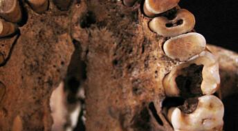 Steinalderfolk hadde råtne tenner