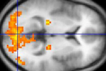 fMRI av hjernen. (Foto: Washington irving, Wikimedia Commons)