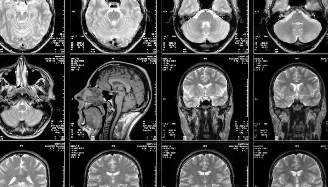 MR-bilder er egentlig satt sammen av en lang rekke mindre biter. Det er helt avgjørende at disse blir riktig rekonstruert.
