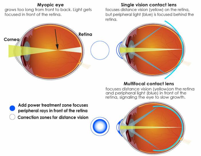 Her kan du se en illustrasjon av hvordan lyset fokuseres i øyet for nærsynte, og hvordan ulike kontaktlinser kan motvirke det.