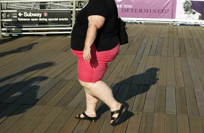 Her til lands reknar ein at det er 100.000 personar med alvorleg fedme. (Foto: Scanpix, Lucas Jackson)
