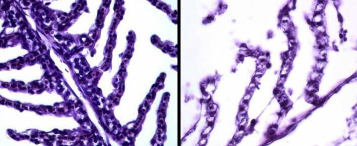 Nanosølv kan være dødelig for laks, viser ny, norsk studie. Gjellebue - en del av gjellene hos fisken - sett gjennom mikroskop. Til venstre friske gjeller, til høyre gjeller der cellene er ødelagt av forgiftning av nanopartikler av sølv. Nanopartikler brukes i blant annet klær og joggesko og kan vaskes ut i norske vassdrag. (Foto: NIVA, montasje: Per Byhring)