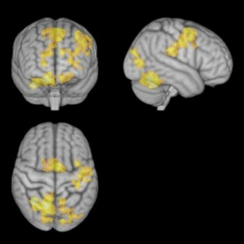 MR av hjernen under konsentrert meditasjon. (Foto: NTNU)
