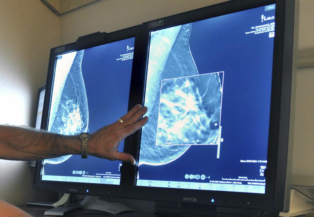 Det kan være krevende for en røntgenlege å tolke noen mammogrammer. Kunstig intelligens kan hjelpe dem i framtiden.