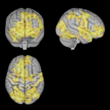 MR av hjernen under ledig meditasjon. Hjernen er langt mer aktiv når tankene vandrer fritt. (Foto: NTNU)