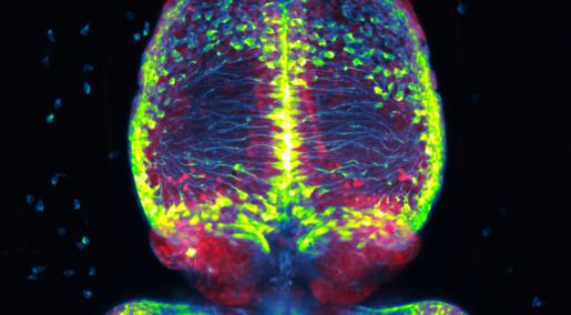 Forskere har fått et hint om hvordan hjernen modner