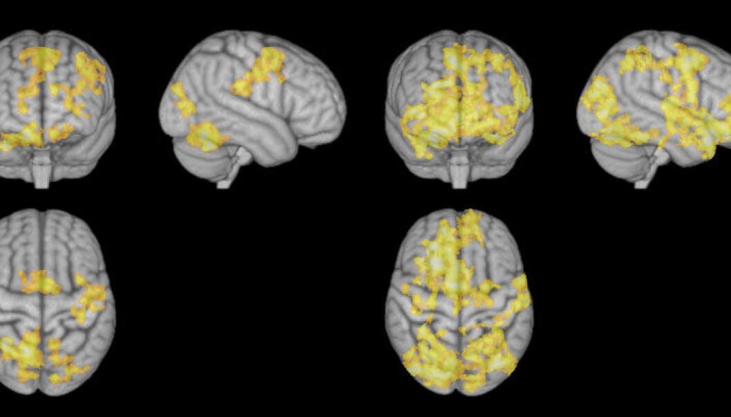 Til venstre: MR av hjernen under konsentrert meditasjon. Til høyre vises hjerneaktivitet under ledig meditasjon. Hjernen er langt mer aktiv når tankene vandrer fritt. NTNU