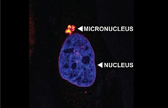 Overzealous cell membrane guardians could increase the risk of cancer