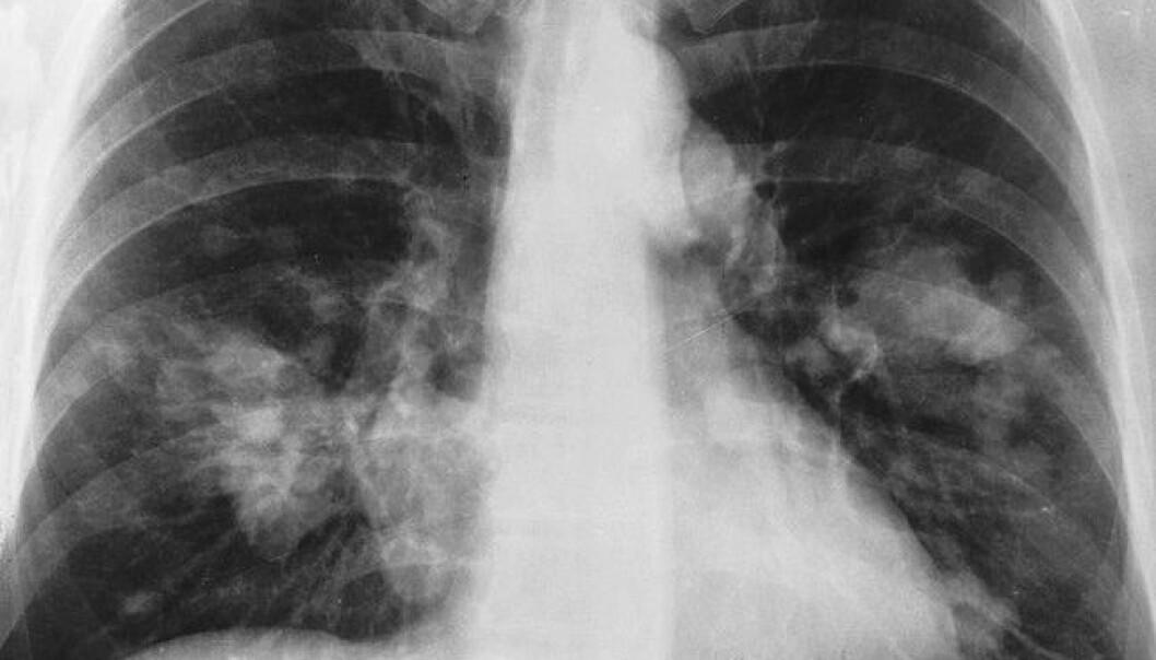 Lungekreft. De hvite skyggene som beveger seg utover fra ryggraden er kreftsvulster. National Cancer Institute