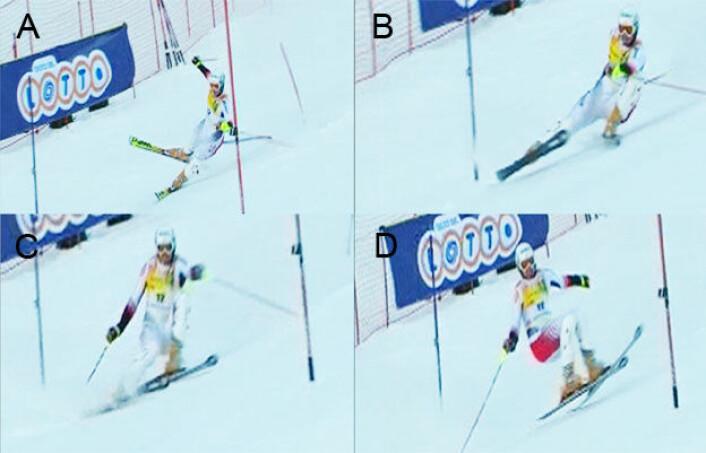 """""""Slip-catch""""-situasjon: A: utøveren er i ubalanse bakover og innover i en venstresving. B: strekker ut beinet for å prøve og gjenvinne grep på ytterskien. C: innerkanten på ytterskien griper brått tak i snøen (antatt skadetidspunkt). D: utøveren faller bakover og over til høyre. (Foto: (Foto/illustrasjon: Senter for idrettsskadeforskning))"""