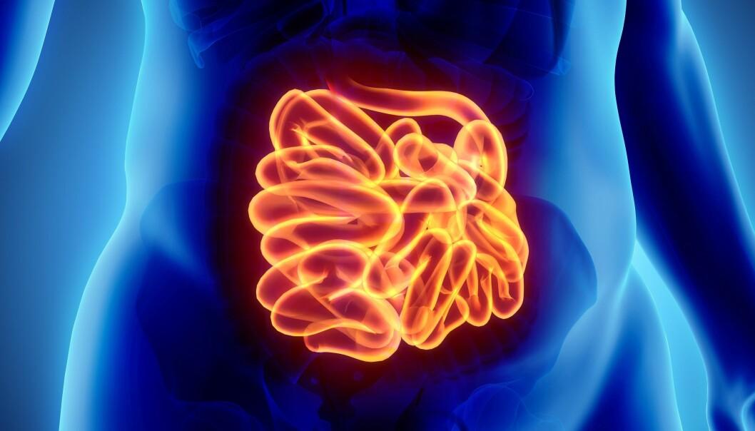 Rundt en femtedel av nordmenn sliter nemlig med forstoppelse, magesmerter, løs mage eller luftproblemer.