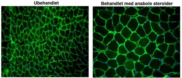 Mikroskopibilder som viser et tverrsnitt av normale muskelceller (til venstre) og muskler behandlet med anabole steroider (til høyre). Cellene som har vært behandlet med steroider er mer enn dobbelt så store. (Foto: (Illustrasjon: Jo C. Bruusgaard))