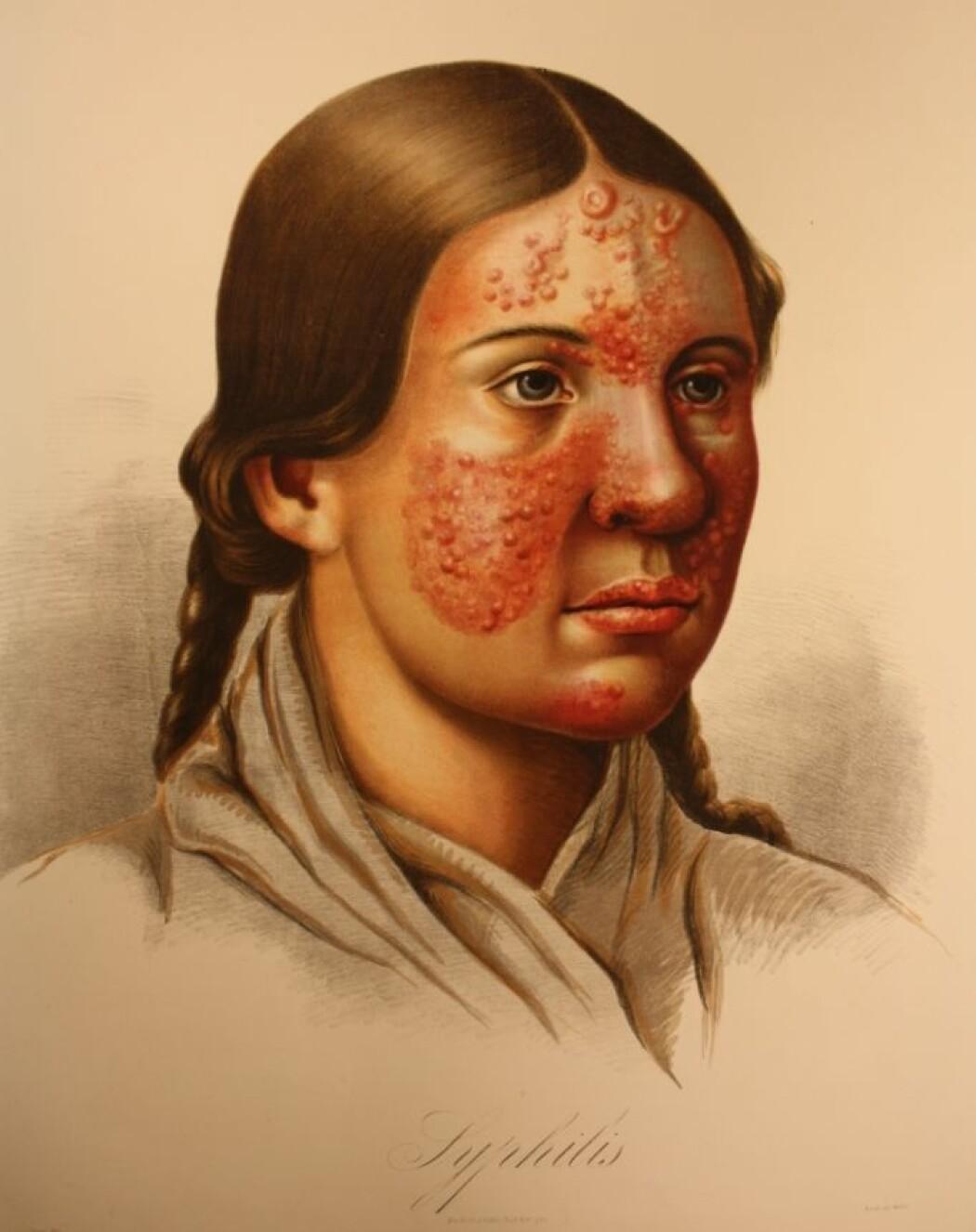 """W. Boeck har skrevet """"Syfilis"""" under tegningen av denne jenta. Slike symptomer ble av mange leger før ham tolket som radesyke. Boeck kan ha hatt rett i sin diagnose."""