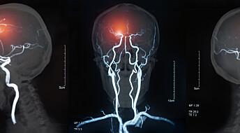 Røykere er mer utsatt for dødelig hjerneblødning, viser studie av tvillinger