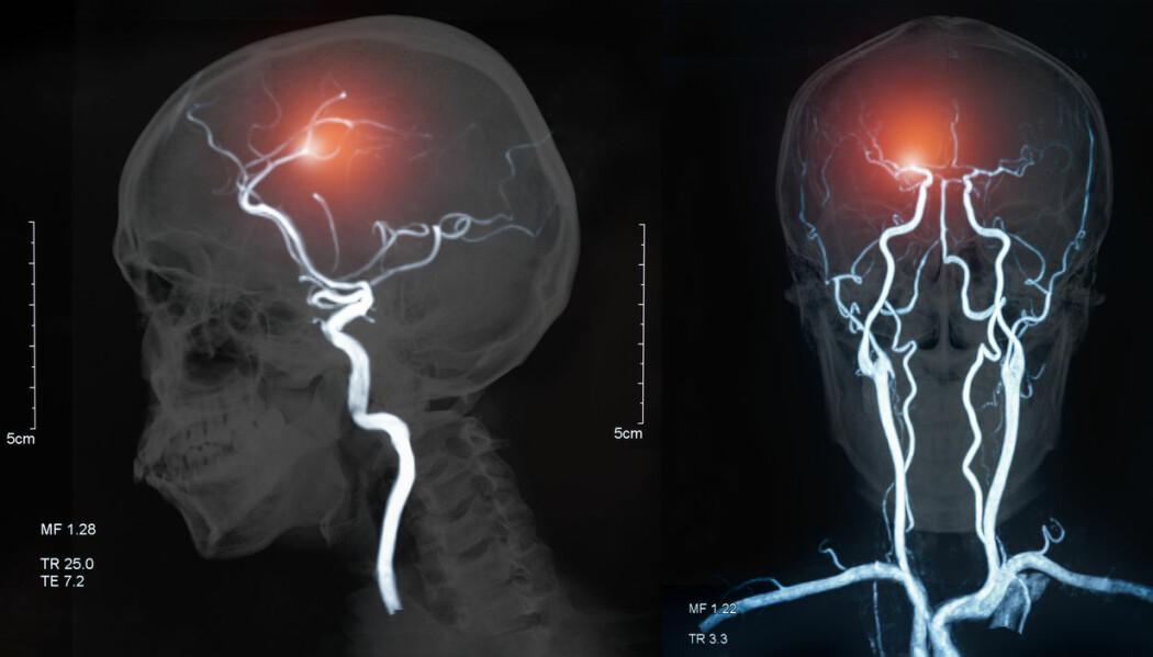 Bildet viser en MRI av blodårer i hjernen og hjerneslag som skyldes hjerneblødning eller blodpropp.