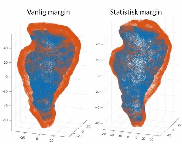 Slik kan forskere skåne mer friskt vev i endetarmen: Det orange området på venstre bildet er vevet som nå blir bestrålt utenfor svulsten for sikkerhets skyld. Det orange området på bildet til høyre er 20 prosent mindre, og basert på de nye statistiske beregningene.