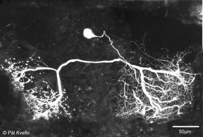 Dette bildet er tatt i mikroskop og viser en nervecelle i insekthjernen som reagerer på sukker. (Foto: Pål Kvello)