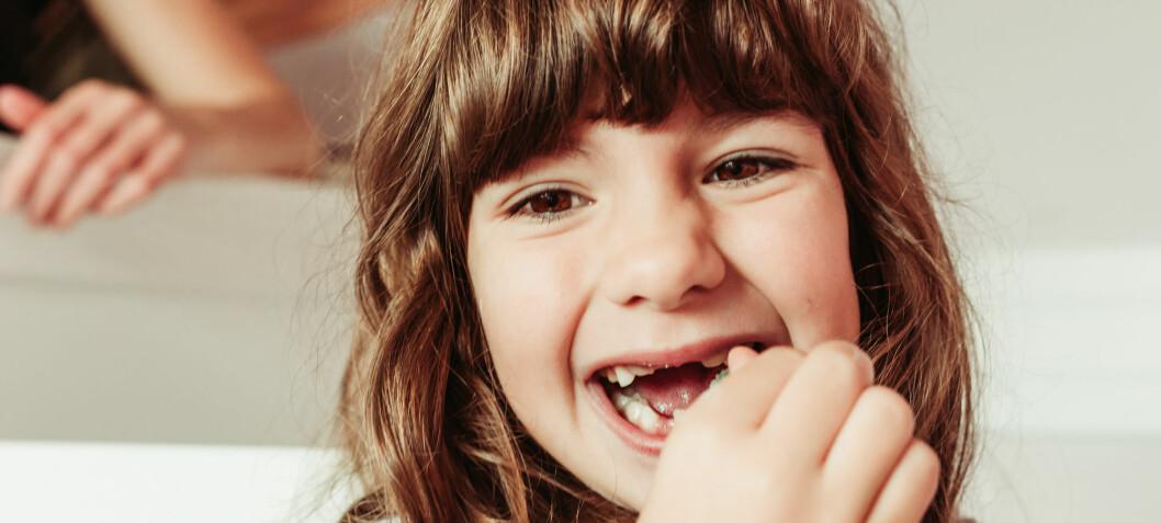 Stadig flere barn og unge får syreskader på tennene