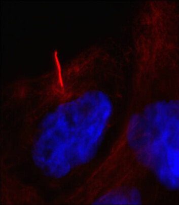 Defekter i cellens cilier (rød strek) er årsak til over 30 forskjellige sykdommer. Dansk grunnforskning skal kartlegge cilienes funksjon, slik at det i framtidens kan lages medisiner til millioner av mennesker som lider av cilierelaterte sykdommer. (Foto: Lotte Bang Pedersen)