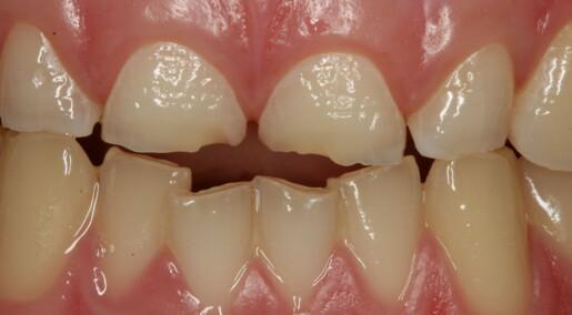 Ungdommer uten syreskader på tennene hadde annerledes spytt