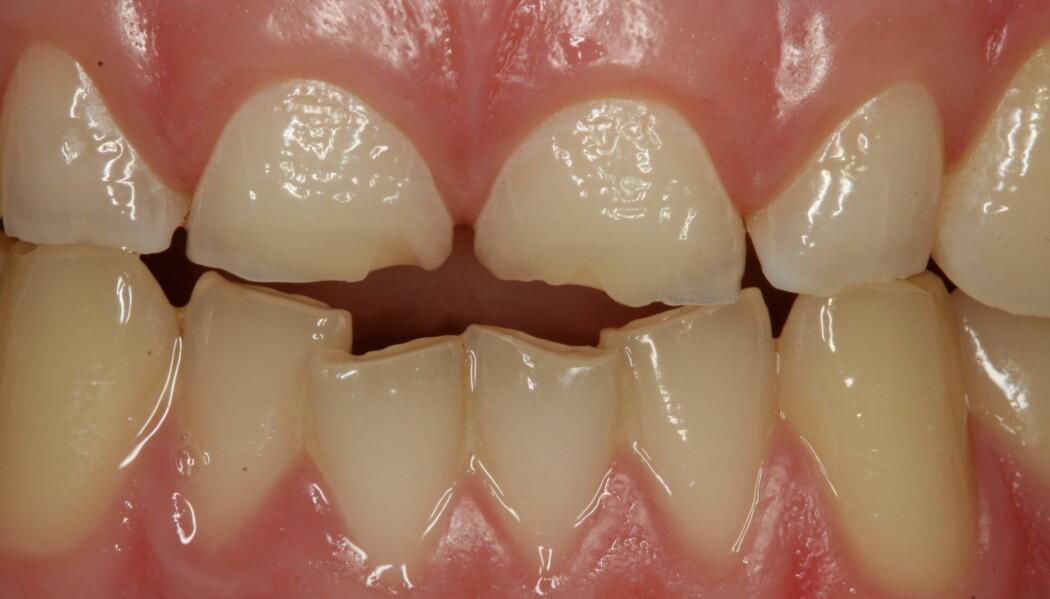 Denne 18-åringen har fått alvorlige syreskader på tennene. Tennene har blitt tynnere og tygging har ført til at biter av tennene har knekt av.