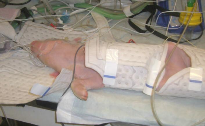 Thoresen tester metodene på rotter og griser i flere år før det kan testes på barn. Her ligger en nyfødt grisunge i kjølejakke. (Foto: Privat)