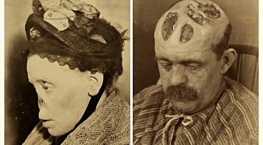Kvikksølv, årelating og dyr var våpen i kampen mot 1700-tallets skamfulle epidemi