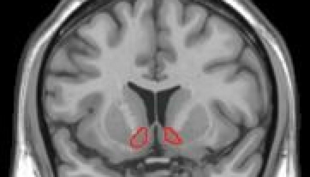 Et MRI-bilde viser hvor i hjernen Nucleus accumbens, et senter viktig for velvære, sitter. Wikimedia commons