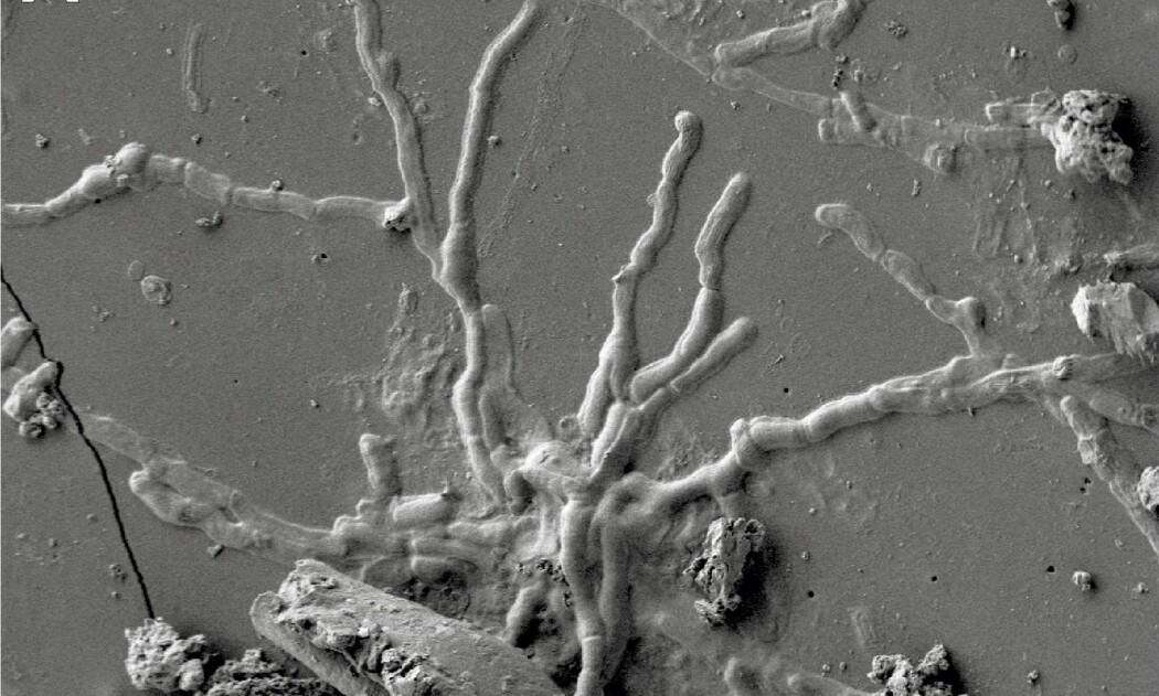 Nærbilde av en bevart, 2000 år gammel hjernecelle.