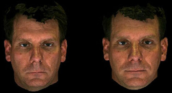 Døm selv. Bildet til venstre viser pasienten før behandling, og bildet til høyre er etter. (Foto: University of Michigan)