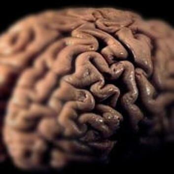"""""""Hjernenharordet i sin makt.(Foto: www.colorbox.no)"""""""