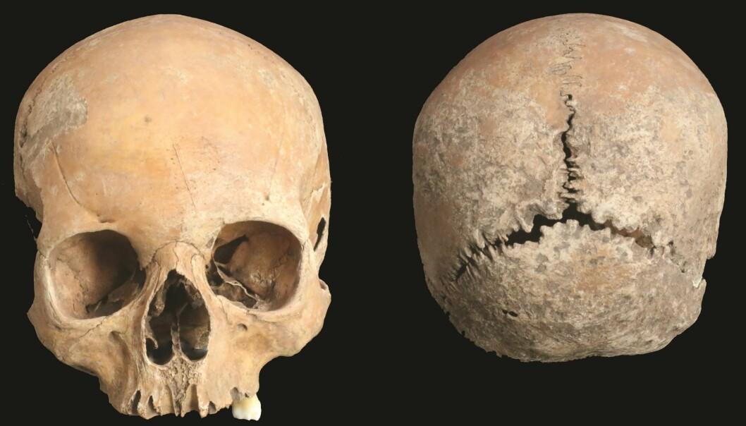 Denne hodeskallen tilhørte en kvinne som levde i England for 1200 år siden.