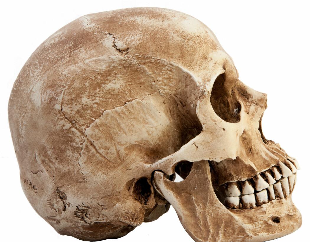 """Her kan du se et eksempel på en """"vanlig"""" hodeskalle, til sammenligning."""