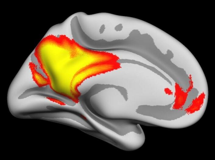 Hjerneaktiviteten i gult og rødt viser områder av hjernebarken involvert i å gjenhente levende minner og fremtidsforestillinger. Områdene snakker ofte sammen og er mest aktive når vi ikke mottar mye ytre stimuli. Aktiviteten er vist på en delvist oppblåst hjerne, som gjør det mulig å se hva som skjer i furene og foldene i hjernebarken. (Foto: (Illustrasjon: Inge Amlien/UiO))