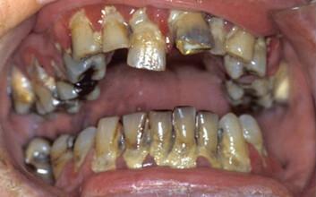Et velfungerende tannsett kan få store skader bare i løpet av få måneder. Her ses resultater av manglende renhold hos eldre syk person. (Foto: (Illustrasjonsfoto med tillatelse fra G. Strand, UiB))