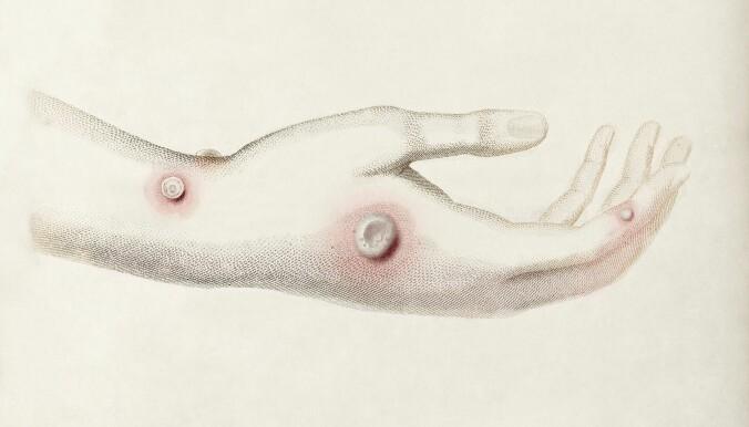 Blemmer på hånden til en person med kukopper fra «An Enquiry into the Causes and Effects of the Variole Vaccine» av legen Edward Jenner (1749-1823). Noen påsto at den milde sykdommen som smittet mennesker som jobbet med kyr, kunne beskytte mot vanlige kopper.